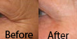 before-after-acupuncture